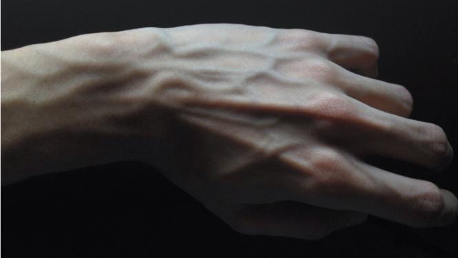 Pembuluh darah.