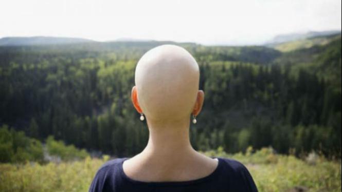 Ilustrasi pasien kanker.