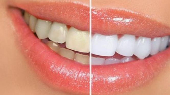 Tips Memutihkan Gigi Dengan Susu Bubuk Dan Pasta Gigi Viva