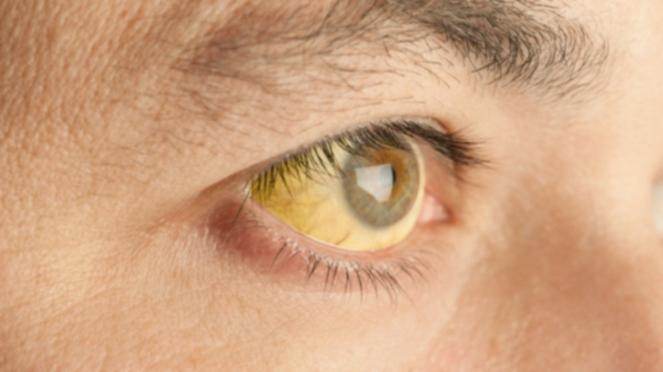 Ilustrasi Hepatitis