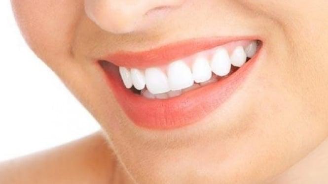 Tips Alami Gigi Putih Bersih Bebas Plak Dalam 10 Hari Viva
