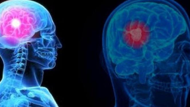 Kanker otak pada pria.