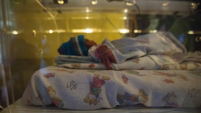 Kelahiran Prematur di Indonesia Masuk Peringkat 5 Tertinggi di Dunia