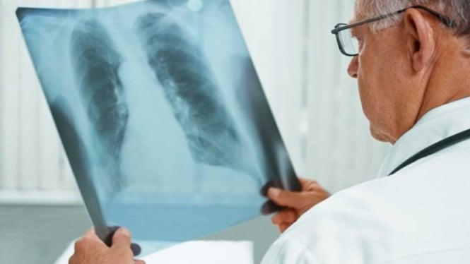 Pneumonia atau infeksi paru-paru.