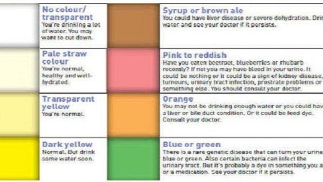 Warna urin.