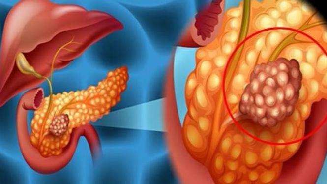 5 Gejala Kanker Pankreas yang Harus Diketahui