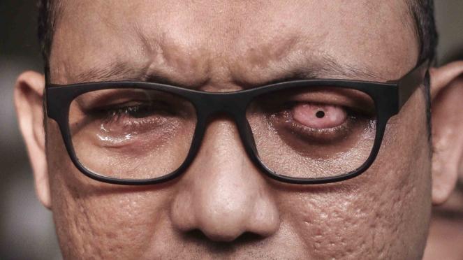 Mata dari Penyidik Senior Komisi Pemberantasan Korupsi (KPK), Novel Baswedan.