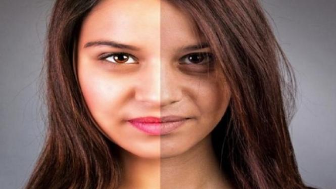 Ilustrasi pigmentasi pada wajah.