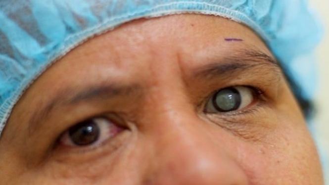 Ilustrasi penderita katarak.