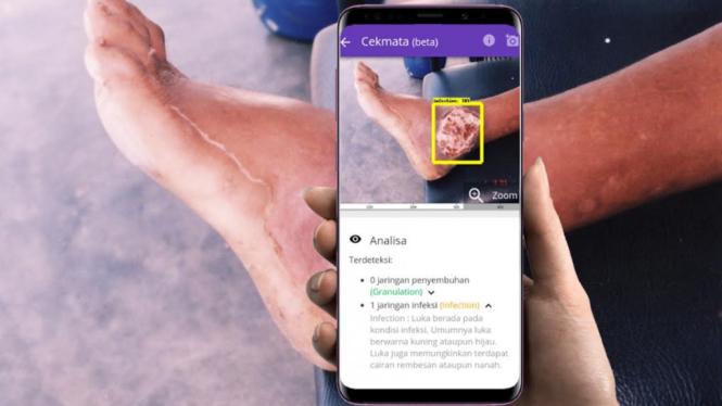 Analisis diabetes melalui aplikasi Cekmata.com