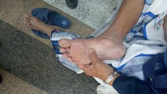 Telapak kaki jemaah haji yang melepuh.