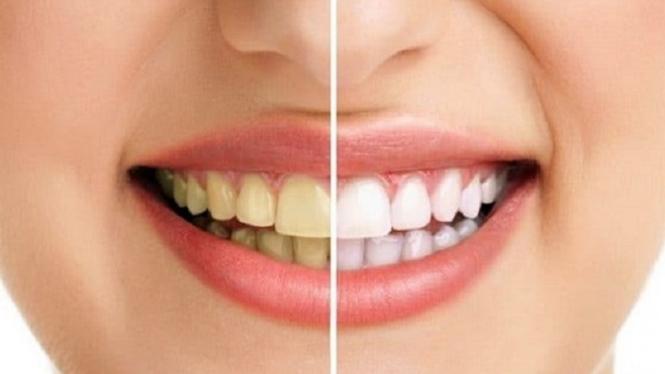 Cara Praktis Gigi Putih Dan Bersih Hanya Dengan Strawberry Viva