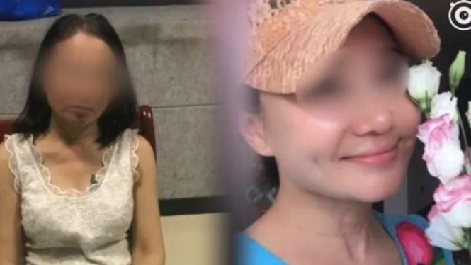 Wanita operasi plastik untuk hindari tagihan kartu kredit