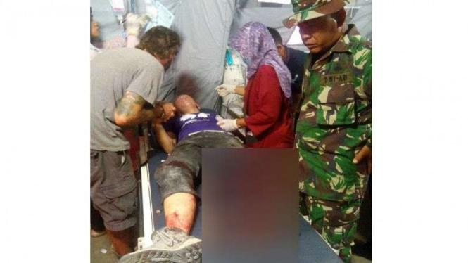 Kaki kiri relawan gempa Lombok asal Amerika Serikat putus tertimpa bangunan