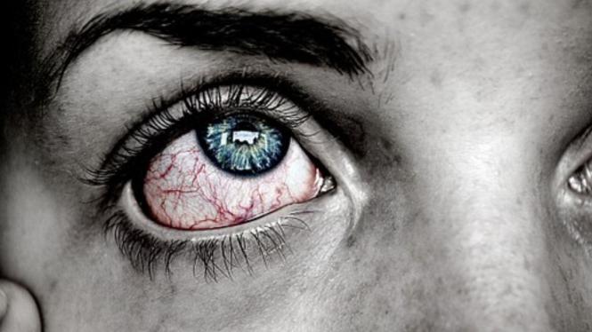 Ilustrasi mata sakit atau merah
