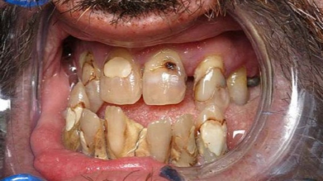 Karang gigi yang buruk. cd3c64527b