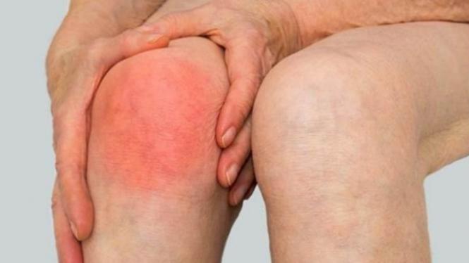 Ilustrasi nyeri sendi lutut.