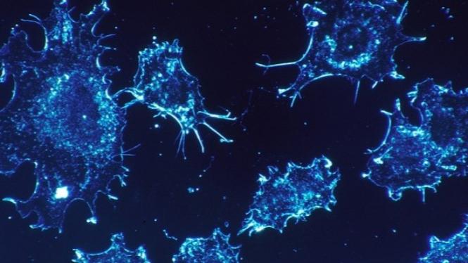 Ilustrasi sel kanker.