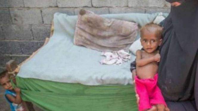 Banyak anak Yaman mati kelaparan akibat perang