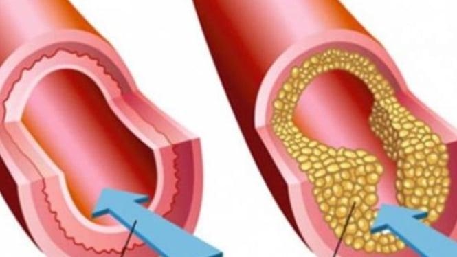 Hasil gambar untuk kolesterol