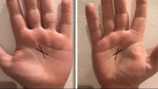 Makna garis x di telapak tangan