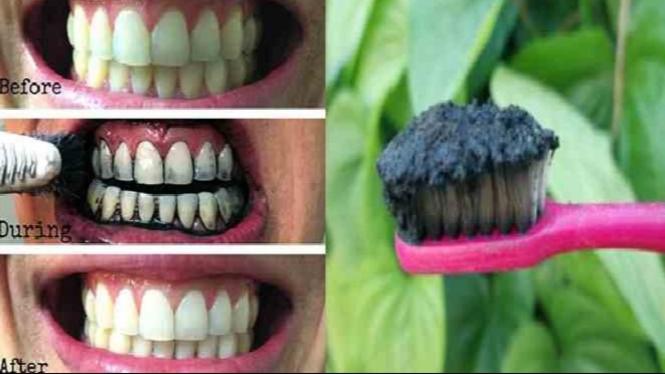 Putihkan Gigi Dalam 5 Menit Dengan Arang Aktif Simak Cara Buatnya