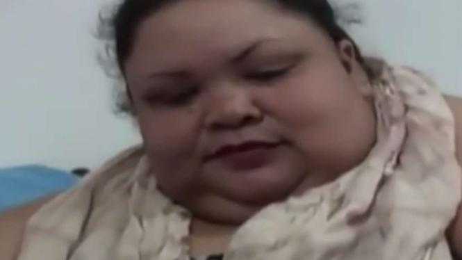Titi Wati mengalami obesitas hingga berbobot 350 kg.