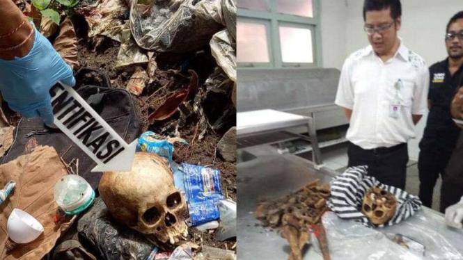 Pemulung Temukan Tengkorak Manusia Di Tempat Sampah