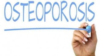 Penyakit osteoporosis.