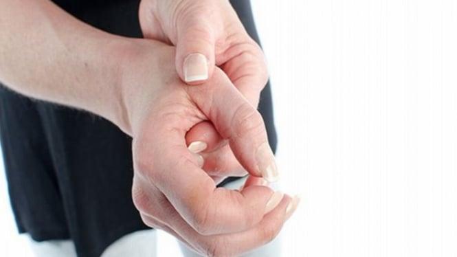 Ilustrasi asam urat di telapak tangan.