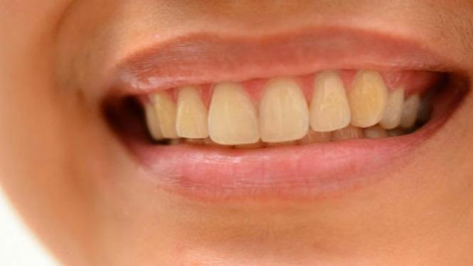 Ilustrasi gigi kuning.