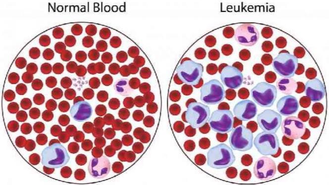 Kanker Darah, Penyakit Mematikan yang Patut Diwaspadai