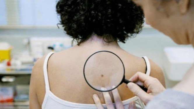 Ilustrasi kanker kulit.