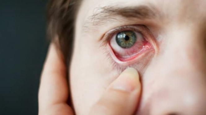 Ilustrasi iritasi mata.