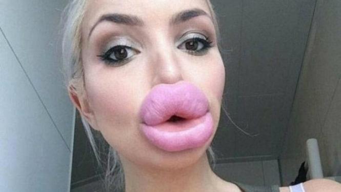 Filler bibir mirip bintang porno