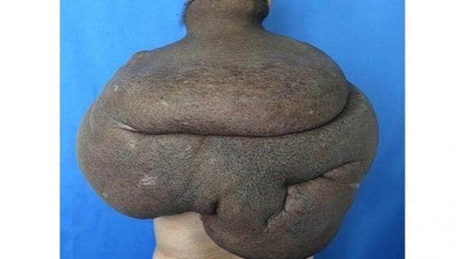 Tumor yang menempel di punggung.