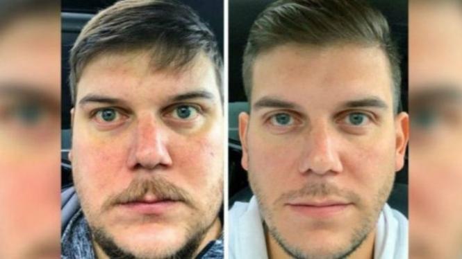 Perubahan fisik pria setelah berhenti minum alkohol.