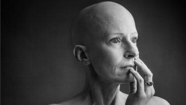 https://thumb.viva.co.id/media/frontend/thumbs3/2019/04/24/5cbfbfe4e430a-kisah-dokter-bedah-kanker-payudara-yang-terkena-kanker-payudara_375_211.jpg