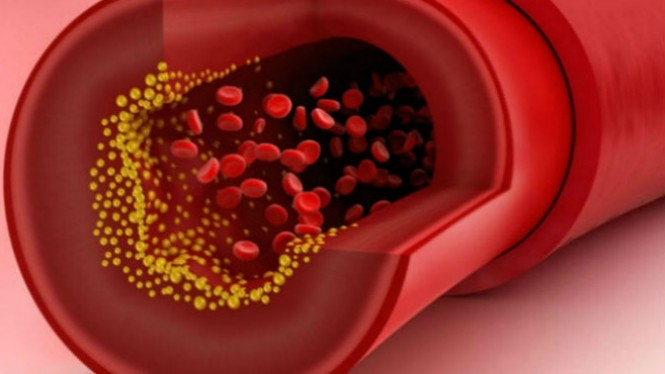 Ilustrasi kolesterol.