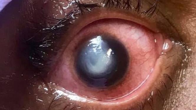 Mata rusak akibat lensa mata.
