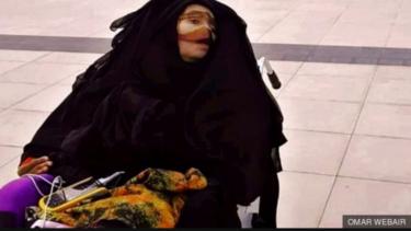 https://thumb.viva.co.id/media/frontend/thumbs3/2019/05/10/5cd4ef027a21f-munira-abdulla-mengalami-kecelakaan-pada-1991-saat-ia-berusia-32-tahun_375_211.jpg
