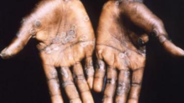Ilustrasi manusia terinfeksi Cacar Monyet.