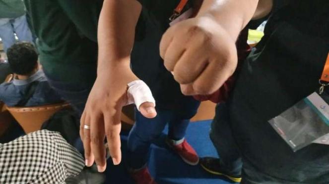 Kondisi seorang jurnalis korban kericuhan laga Liga 1 PSS Sleman vs Arema FC