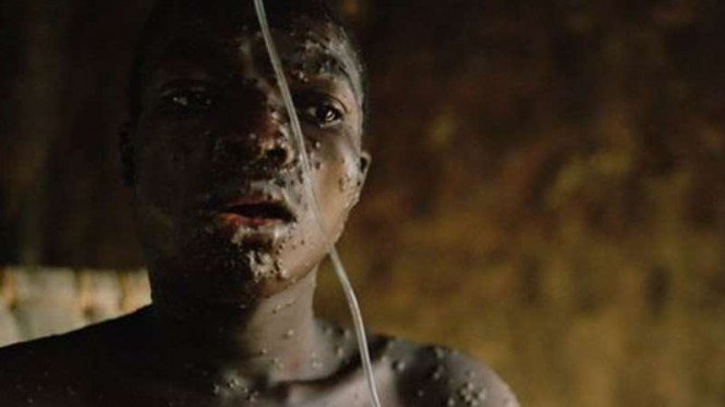 Seorang pemuda terinfeksi Monkeypox.