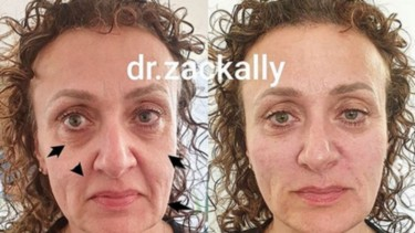 Sebelum dan sesudah perawatan dengan teknik artistic full facial transformation