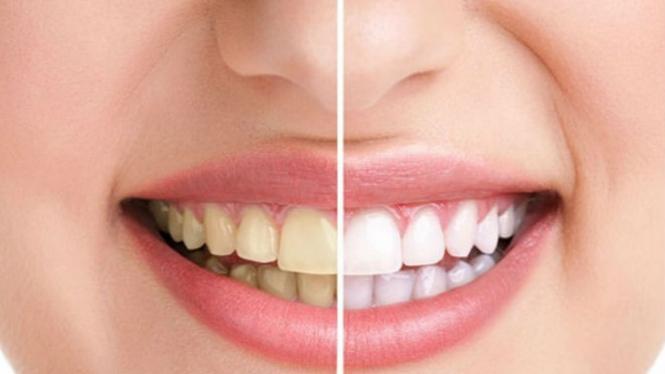 Ilustrasi gigi kuning dan putih.