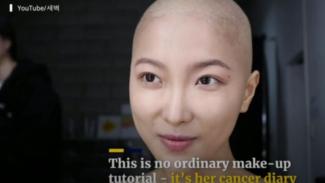 https://thumb.viva.co.id/media/frontend/thumbs3/2019/05/26/5ce9f57c4192c-dawn-lee-beauty-youtuber-yang-menderita-limfoma_325_183.jpg