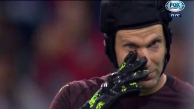 Kiper Arsenal, Petr Cech, menangis