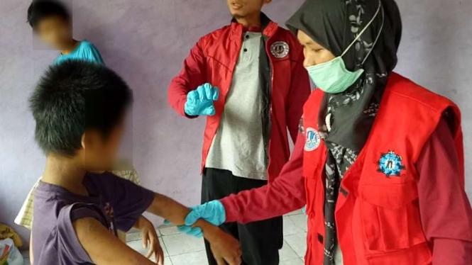 Petugas medis memeriksa seorang anak dari satu keluarga yang terserang penyakit menyerupai cacar dan dikhawatirkan cacar monyet di Kabupaten Bogor, Jawa Barat, pada Kamis, 30 Mei 2019.