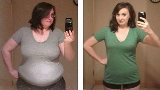 Sebelum dan sesudah berat badan Amanda turun.